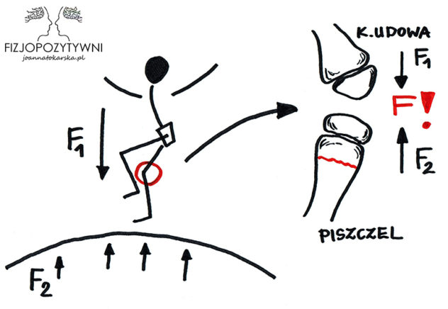 Złamanie trampolinowe.Siły działające na struktury kostne podczas lądowania na trampolinę, która jest w trakcie oddawania energii po skoku drugiej osoby. Siła F! jest sumą sił F1 – spadającego dziecka i F2 – odbitej trampoliny. Na czerwono zaznaczyłam przykładową linię złamania. Joanna Tokarska fizopozytywni