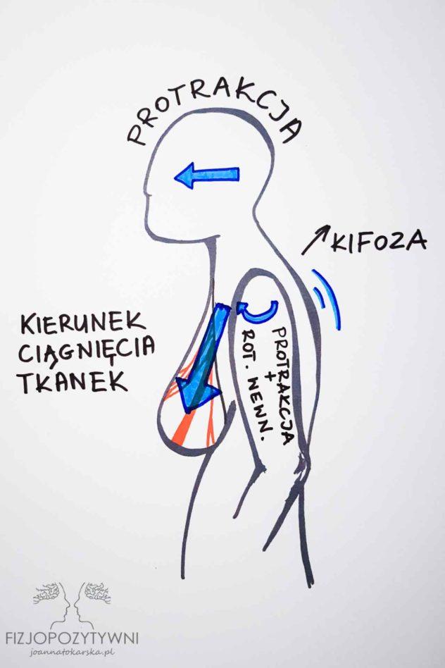 """Czy plecy mogą boleć od piersi? Pod wpływem siły grawitacji więzadła mające pierwotnie podtrzymywać biust, pociągają za powięź okalającą mięsień piersiowy. Może to spowodować ustawienie klatki piersiowej w """"pozycji zamkniętej"""". Teoretycznie taka sytuacja może spowodować także inne zmiany w posturze ciała."""